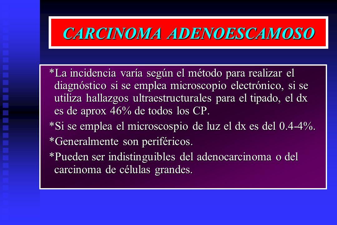 CARCINOMA ADENOESCAMOSO *La incidencia varía según el método para realizar el diagnóstico si se emplea microscopio electrónico, si se utiliza hallazgo