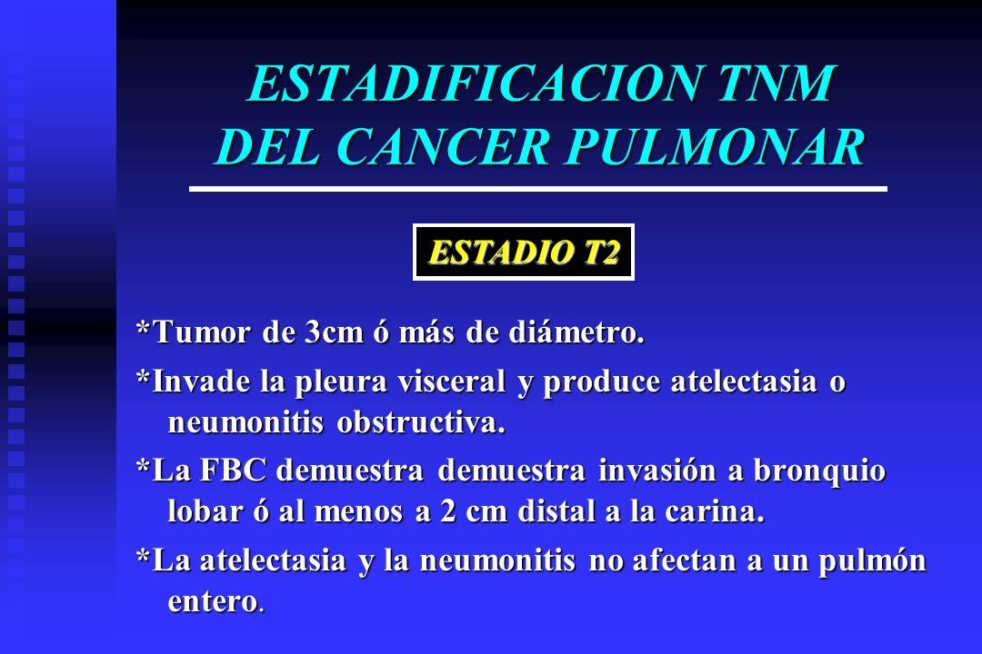 ESTADIFICACION TNM DEL CANCER PULMONAR *Tumor de 3cm ó más de diámetro. *Invade la pleura visceral y produce atelectasia o neumonitis obstructiva. *La