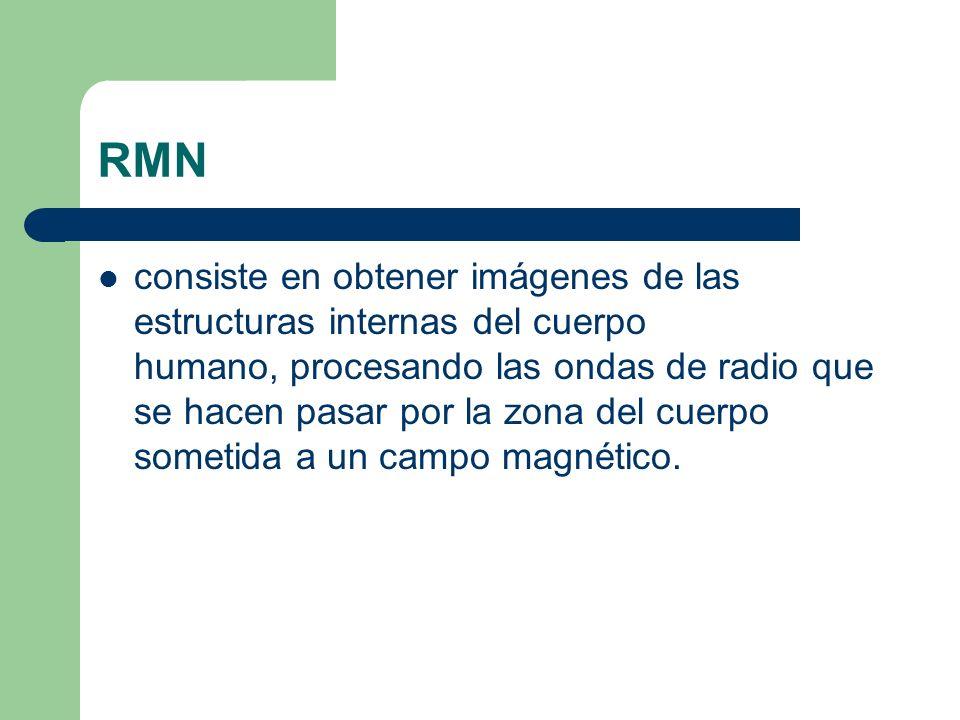 RMN consiste en obtener imágenes de las estructuras internas del cuerpo humano, procesando las ondas de radio que se hacen pasar por la zona del cuerp