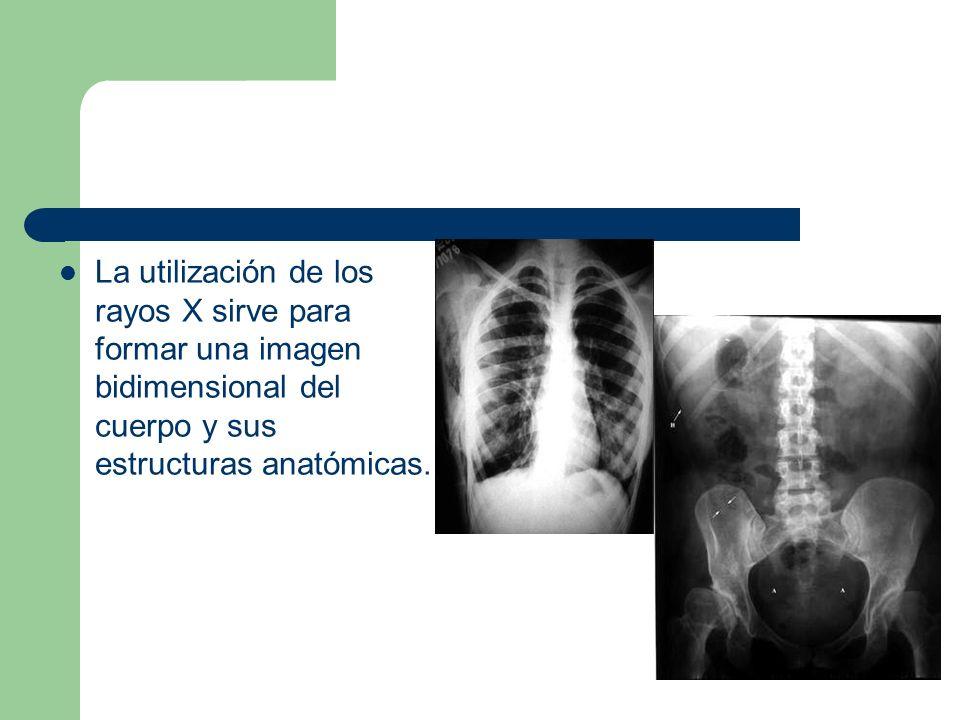 La utilización de los rayos X sirve para formar una imagen bidimensional del cuerpo y sus estructuras anatómicas.