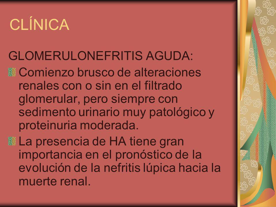 CLÍNICA GLOMERULONEFRITIS AGUDA: Comienzo brusco de alteraciones renales con o sin en el filtrado glomerular, pero siempre con sedimento urinario muy