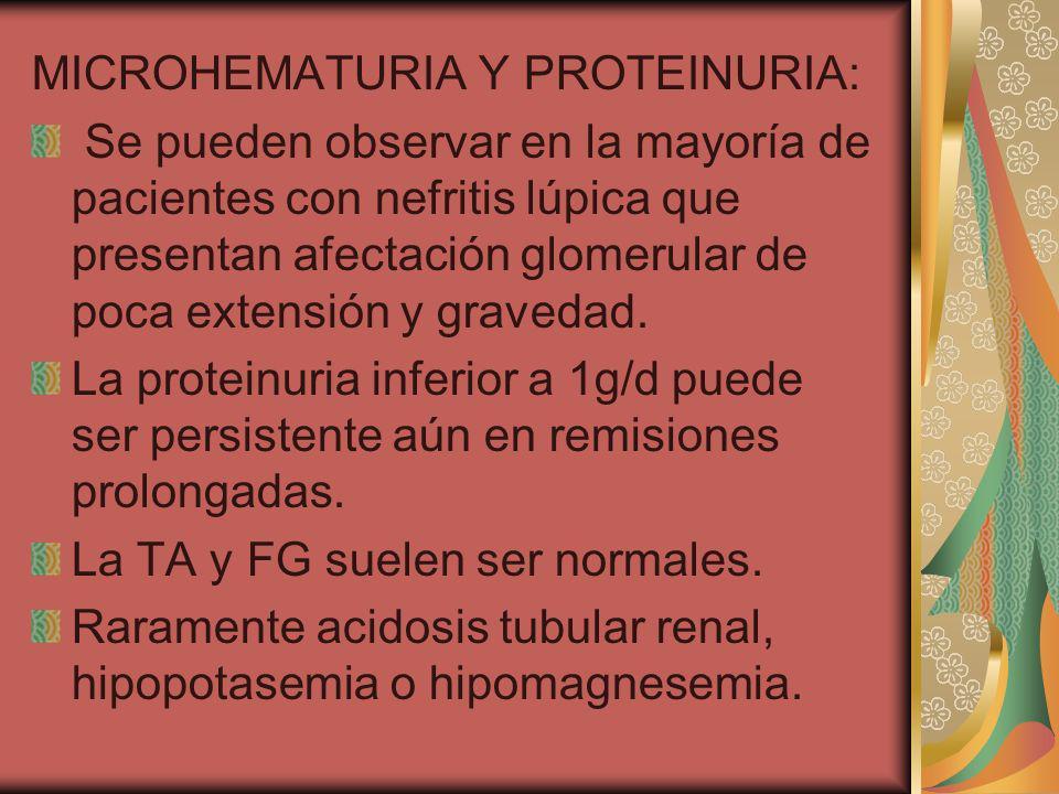 MICROHEMATURIA Y PROTEINURIA: Se pueden observar en la mayoría de pacientes con nefritis lúpica que presentan afectación glomerular de poca extensión