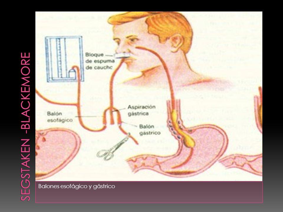 Balones esofágico y gástrico