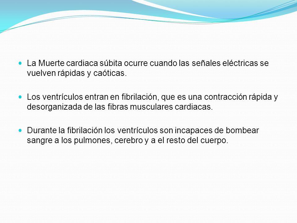 El corazón es incapaz de recuperarse por si solo de un episodio de fibrilación ventricular (FV).