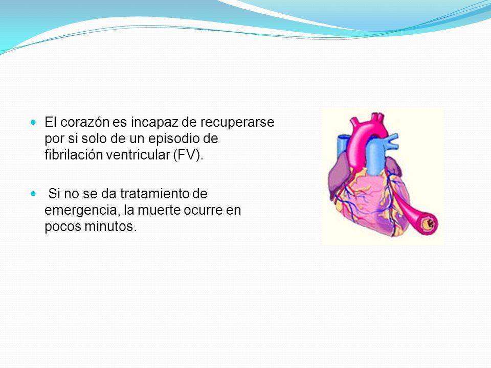 AGRECION AGUDA FIBRILACION VENTRICULAR FALLA ELECTRICA PRIMARIA FALLA MECANICA SECUNDARIA REANIMACION TEMPRANA RECUPERACION HIPOXIA ESTIMULACION VAGAL ACIDOSIS METABOLICA DISMINUCION DE EXITABILIDAD Y CONTRACTILIDAD PARO CARDIACO IRREVERSIBLE (MUERTE)