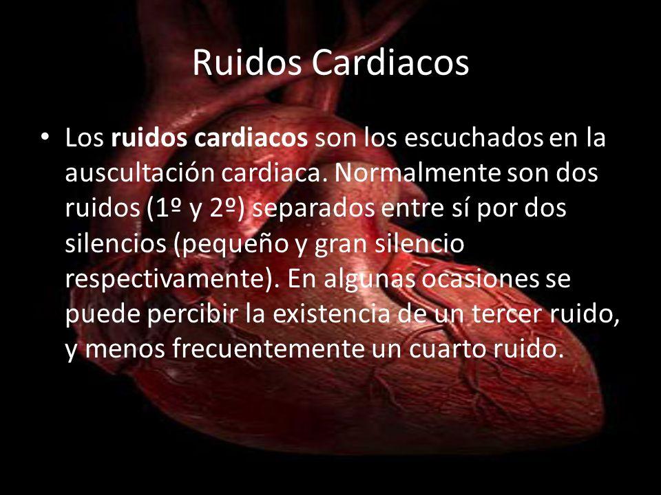 Primer Ruido Corresponde al comienzo de la sístole ventricular, resulta del cierre de las válvulas mitral y tricúspide y de la apertura de las aórticas y pulmonares, además del inicio de la contracción ventricular.