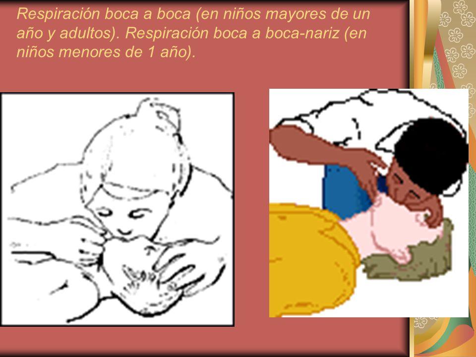 Respiración boca a boca (en niños mayores de un año y adultos). Respiración boca a boca-nariz (en niños menores de 1 año).