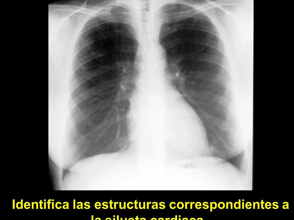 Identifica las estructuras correspondientes a la silueta cardiaca