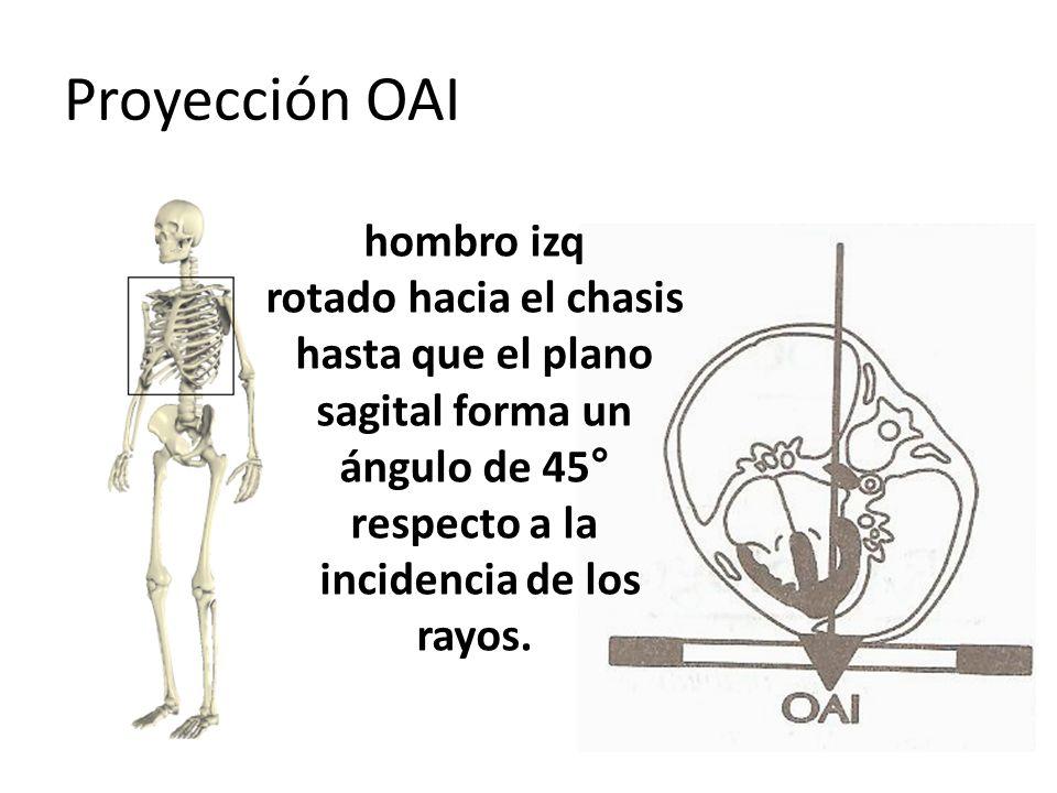 Proyección OAI hombro izq rotado hacia el chasis hasta que el plano sagital forma un ángulo de 45° respecto a la incidencia de los rayos.