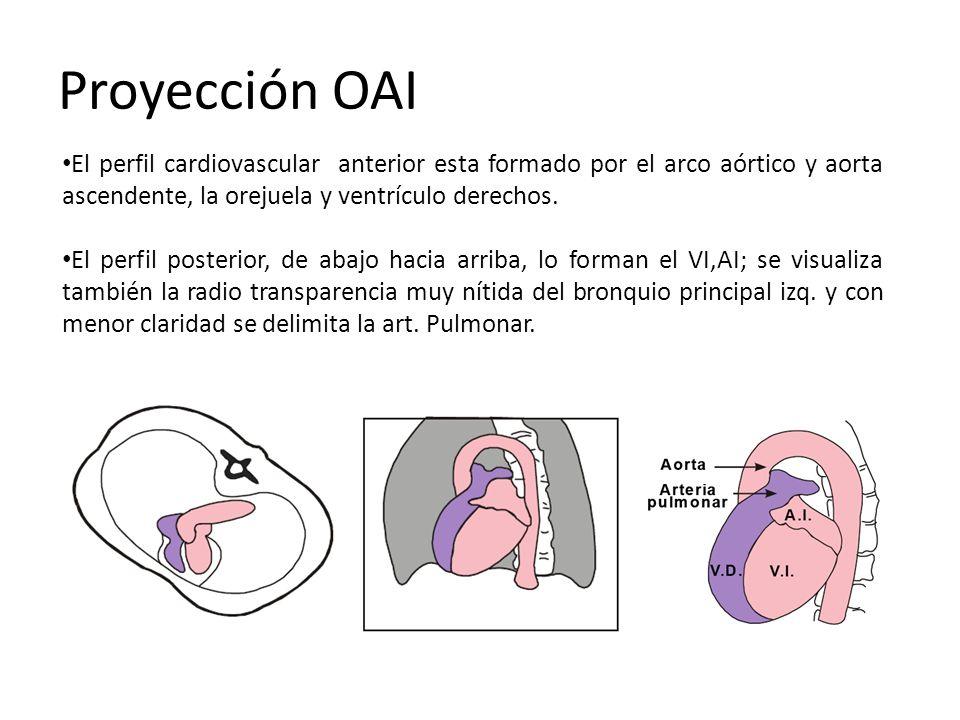 Proyección OAI El perfil cardiovascular anterior esta formado por el arco aórtico y aorta ascendente, la orejuela y ventrículo derechos. El perfil pos