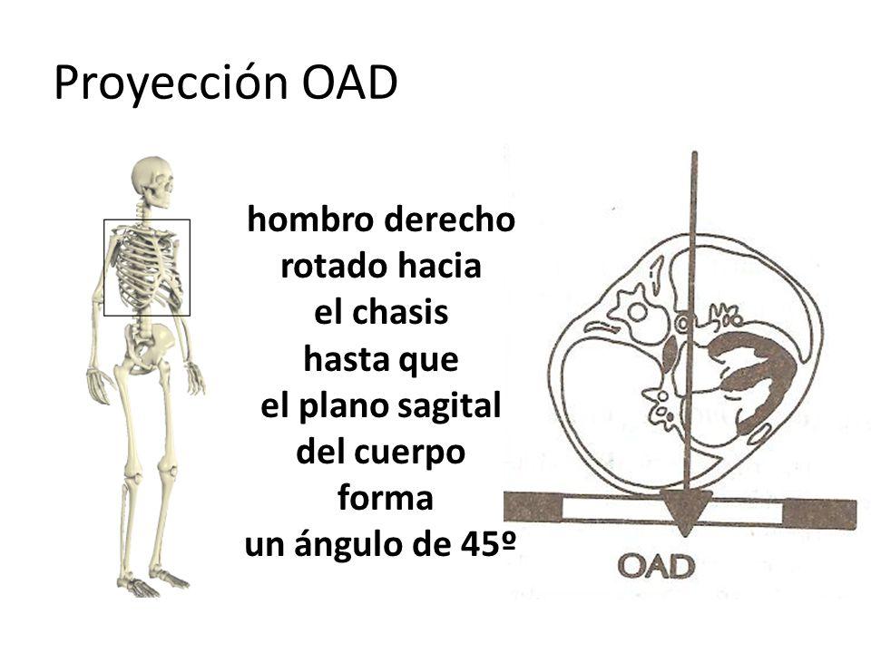 Proyección OAD hombro derecho rotado hacia el chasis hasta que el plano sagital del cuerpo forma un ángulo de 45º
