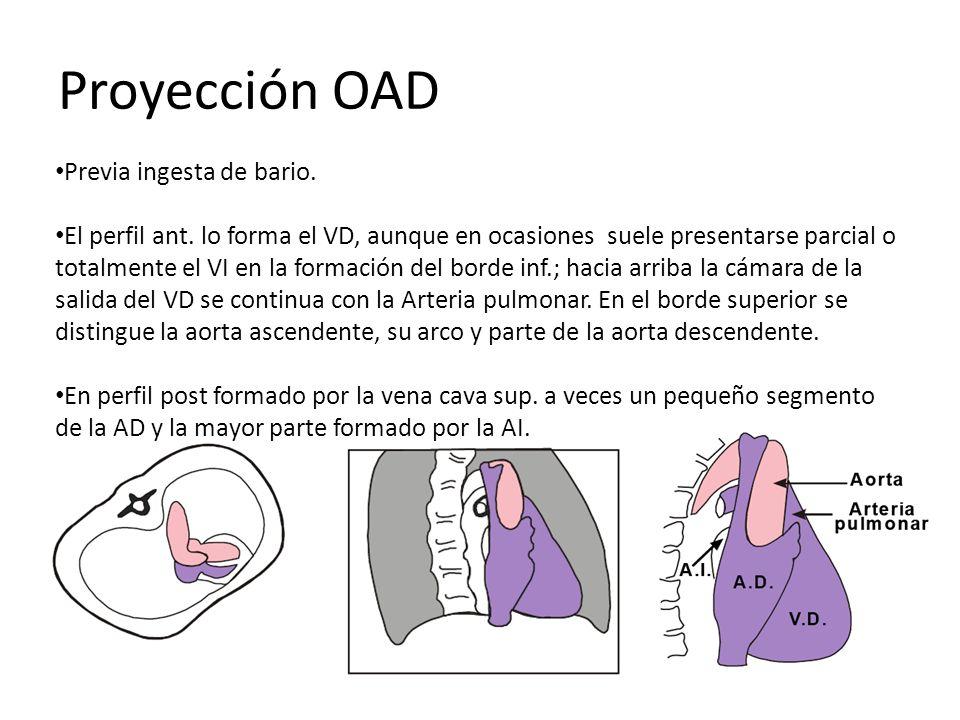 Proyección OAD Previa ingesta de bario. El perfil ant. lo forma el VD, aunque en ocasiones suele presentarse parcial o totalmente el VI en la formació