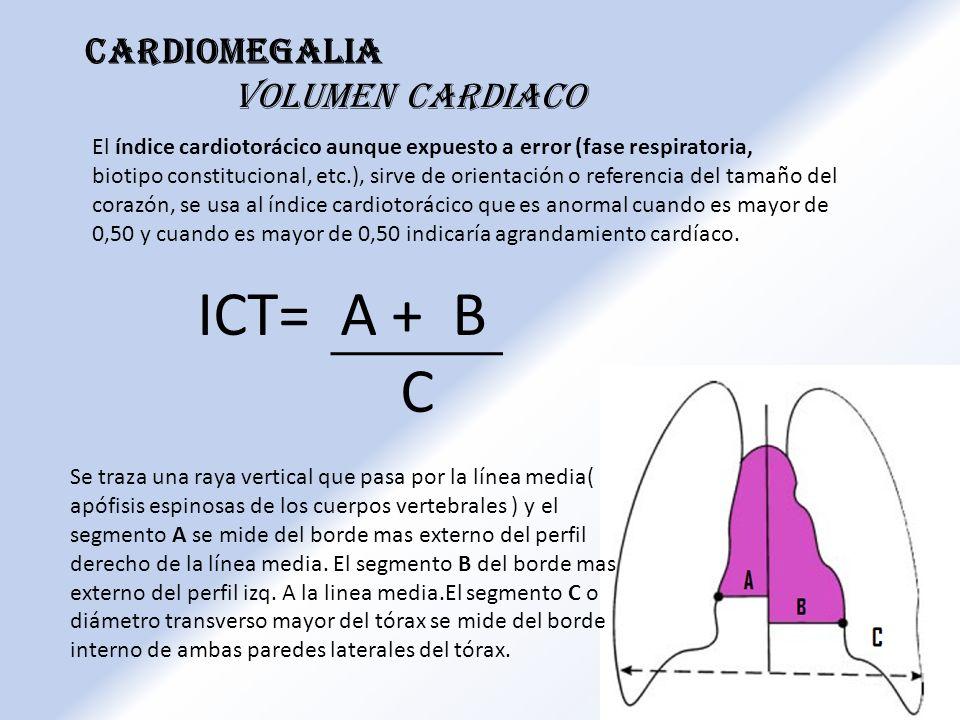 Cardiomegalia Volumen cardiaco El índice cardiotorácico aunque expuesto a error (fase respiratoria, biotipo constitucional, etc.), sirve de orientació