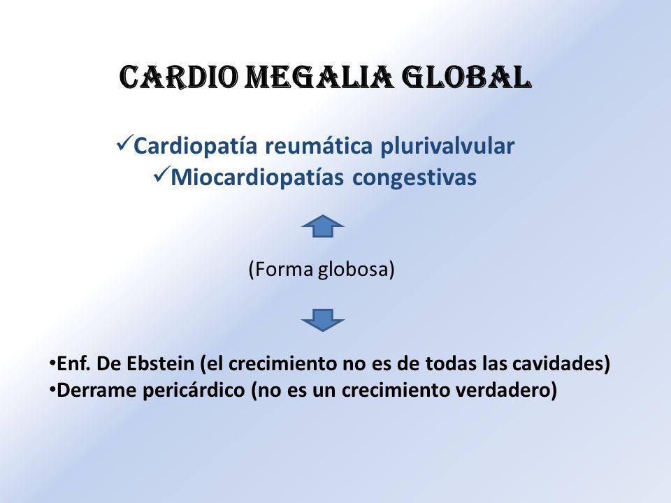 Cardiopatía reumática plurivalvular Miocardiopatías congestivas CARDIO MEGALIA GLOBAL Enf. De Ebstein (el crecimiento no es de todas las cavidades) De