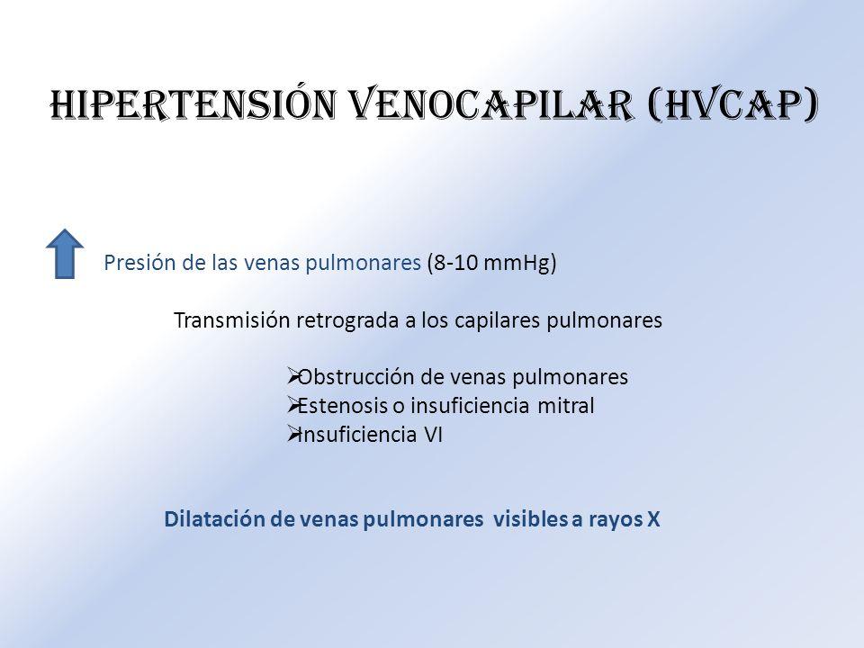 HIPERTENSIÓN VENOCAPILAR (HVCAP) Presión de las venas pulmonares (8-10 mmHg) Transmisión retrograda a los capilares pulmonares Obstrucción de venas pu