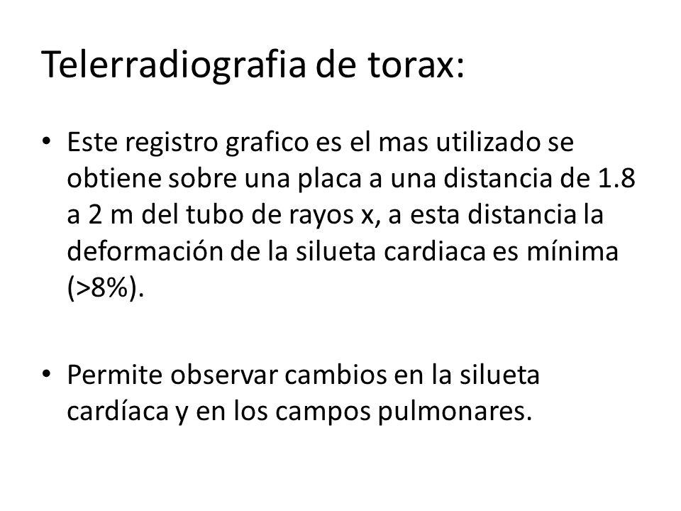 Telerradiografia de torax: Este registro grafico es el mas utilizado se obtiene sobre una placa a una distancia de 1.8 a 2 m del tubo de rayos x, a es
