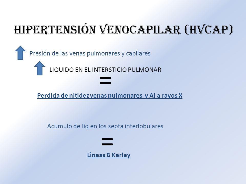 HIPERTENSIÓN VENOCAPILAR (HVCAP) Presión de las venas pulmonares y capilares LIQUIDO EN EL INTERSTICIO PULMONAR = Perdida de nitidez venas pulmonares