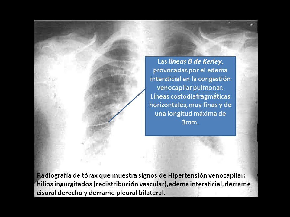 Las líneas B de Kerley, provocadas por el edema intersticial en la congestión venocapilar pulmonar. Líneas costodiafragmáticas horizontales, muy finas