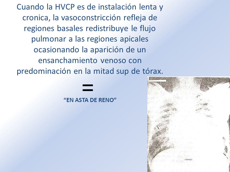 Cuando la HVCP es de instalación lenta y cronica, la vasoconstricción refleja de regiones basales redistribuye le flujo pulmonar a las regiones apical
