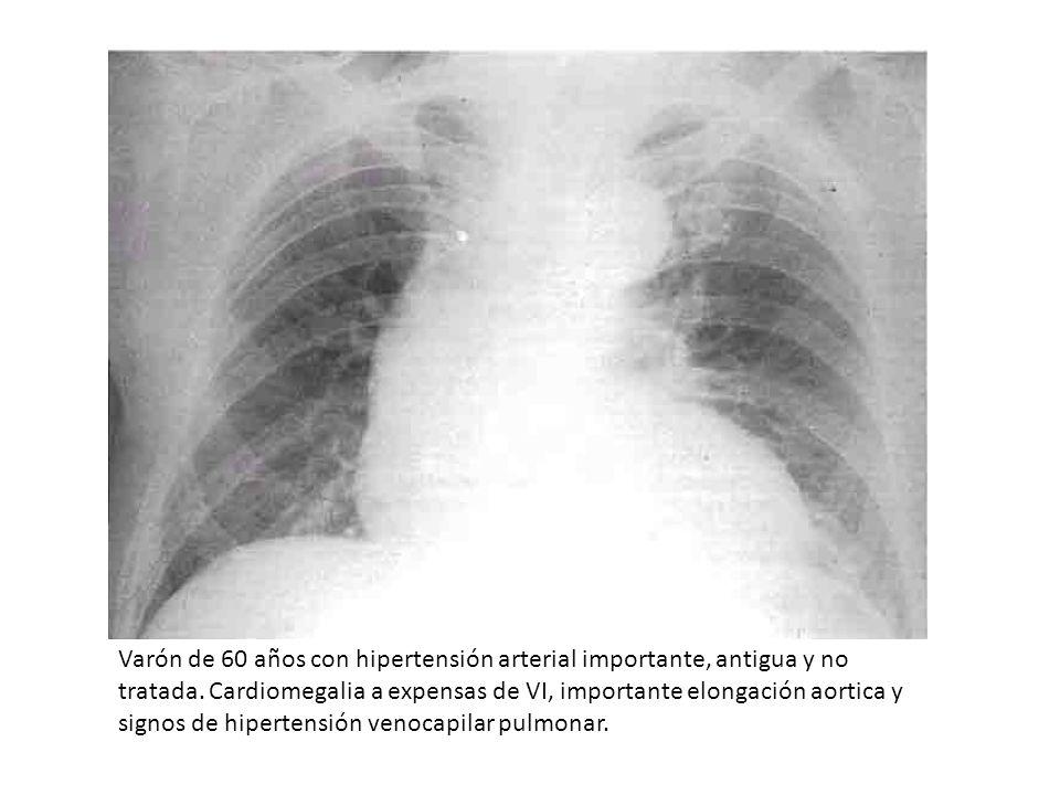 Varón de 60 años con hipertensión arterial importante, antigua y no tratada. Cardiomegalia a expensas de VI, importante elongación aortica y signos de