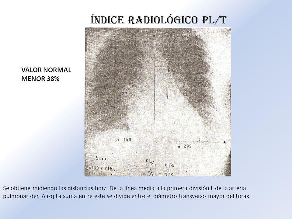 Se obtiene midiendo las distancias horz. De la línea media a la primera división L de la arteria pulmonar der. A izq.La suma entre este se divide entr