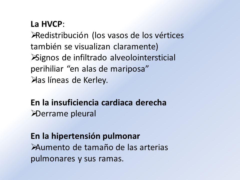 La HVCP: Redistribución (los vasos de los vértices también se visualizan claramente) Signos de infiltrado alveolointersticial perihiliar en alas de ma