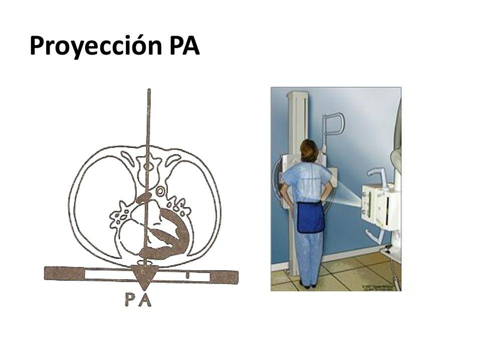 Proyección PA