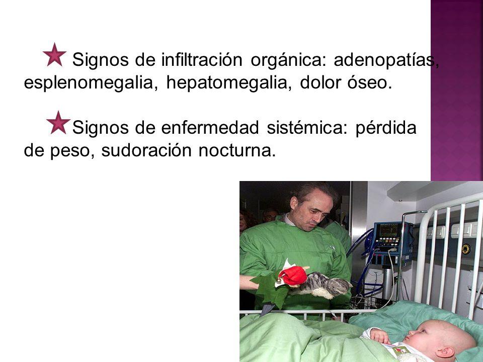 Signos de infiltración orgánica: adenopatías, esplenomegalia, hepatomegalia, dolor óseo. Signos de enfermedad sistémica: pérdida de peso, sudoración n