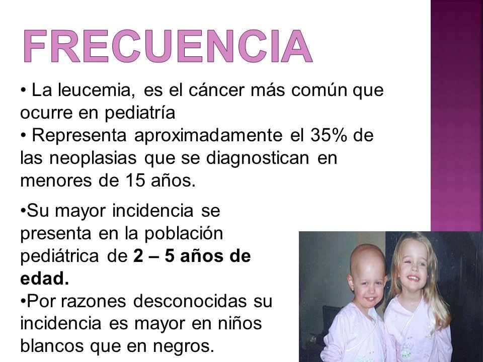 La leucemia, es el cáncer más común que ocurre en pediatría Representa aproximadamente el 35% de las neoplasias que se diagnostican en menores de 15 a
