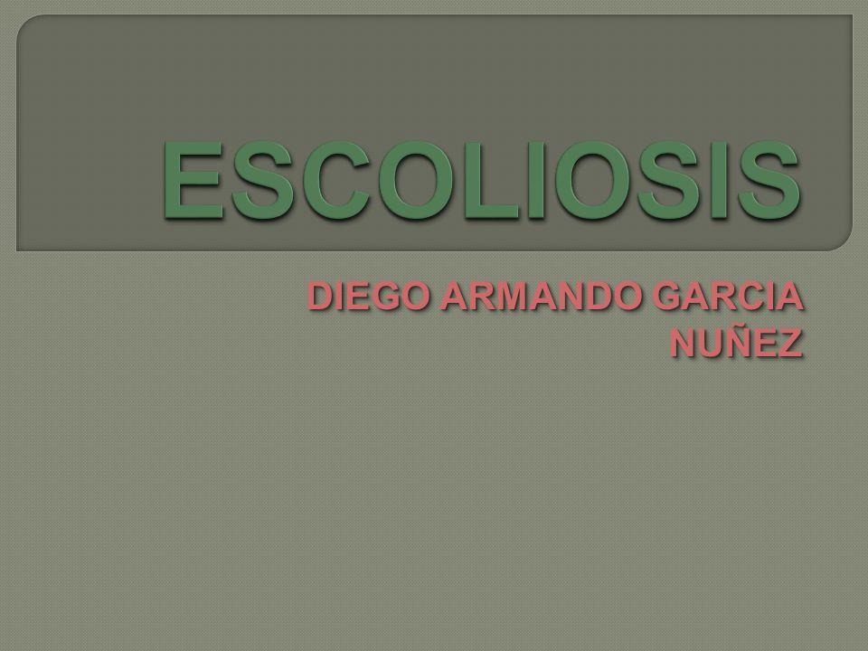Una escoliosis es una desviación estructural de la columna vertebral que no desaparece con la inclinación de la pelvis ni cuando el paciente se inclina hacia adelante Siempre existe un componente de rotación Estos principios fundamentales diferencian una escoliosis de una actitud escoliótica