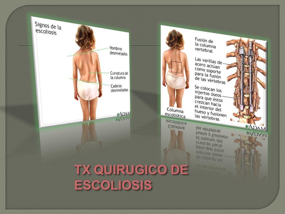 TX QUIRUGICO DE ESCOLIOSIS