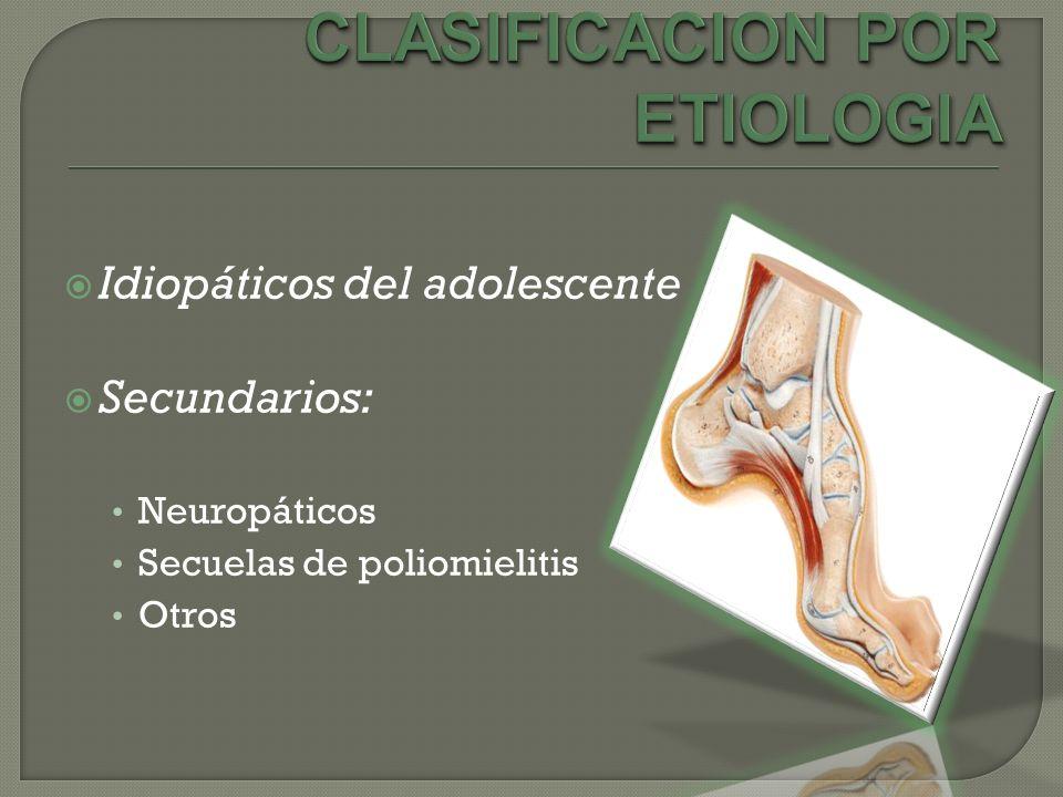 Idiopáticos del adolescente Secundarios: Neuropáticos Secuelas de poliomielitis Otros