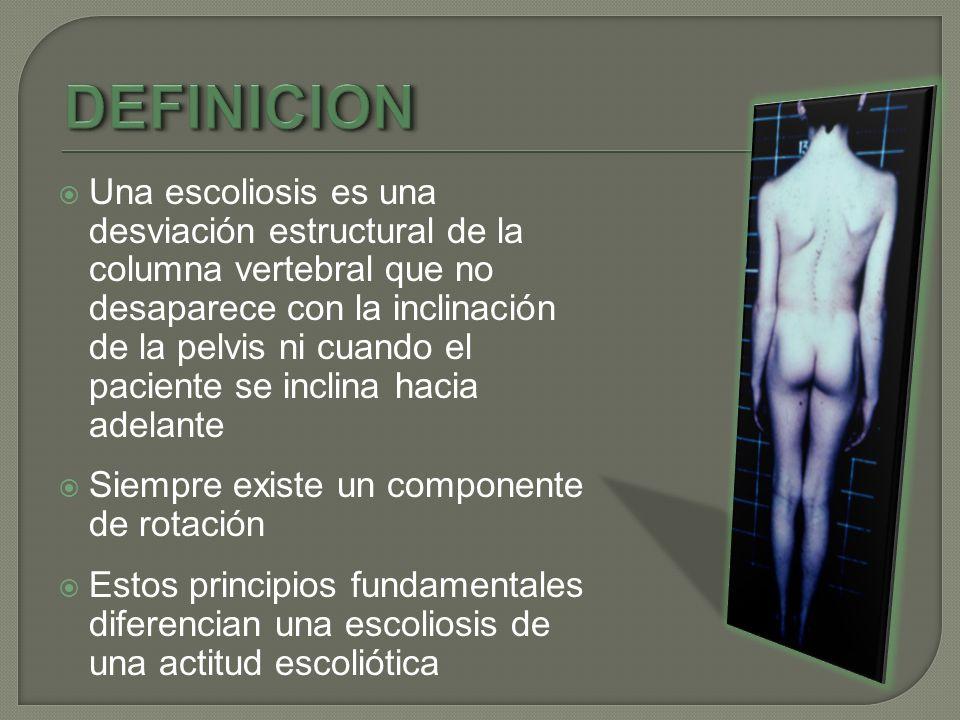 Una escoliosis es una desviación estructural de la columna vertebral que no desaparece con la inclinación de la pelvis ni cuando el paciente se inclin