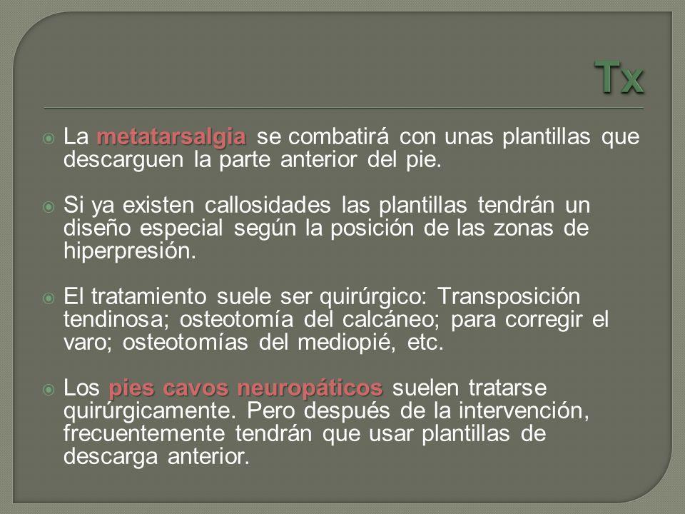 metatarsalgia La metatarsalgia se combatirá con unas plantillas que descarguen la parte anterior del pie. Si ya existen callosidades las plantillas te