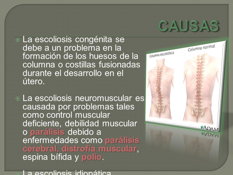 La escoliosis congénita se debe a un problema en la formación de los huesos de la columna o costillas fusionadas durante el desarrollo en el útero. pa