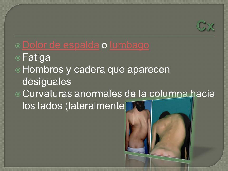 Dolor de espalda o lumbago Dolor de espaldalumbago Fatiga Hombros y cadera que aparecen desiguales Curvaturas anormales de la columna hacia los lados