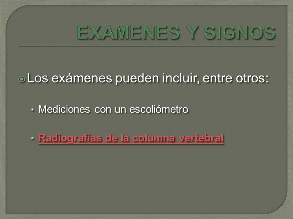 Los exámenes pueden incluir, entre otros: Los exámenes pueden incluir, entre otros: Mediciones con un escoliómetro Mediciones con un escoliómetro Radi