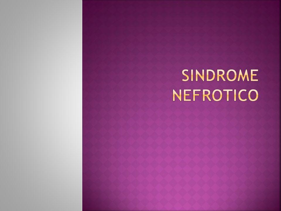 Este Sx caracteriza por: Albuminuria masiva(mas de 3.5 por día o por 1.73m2 de superficie corporal).