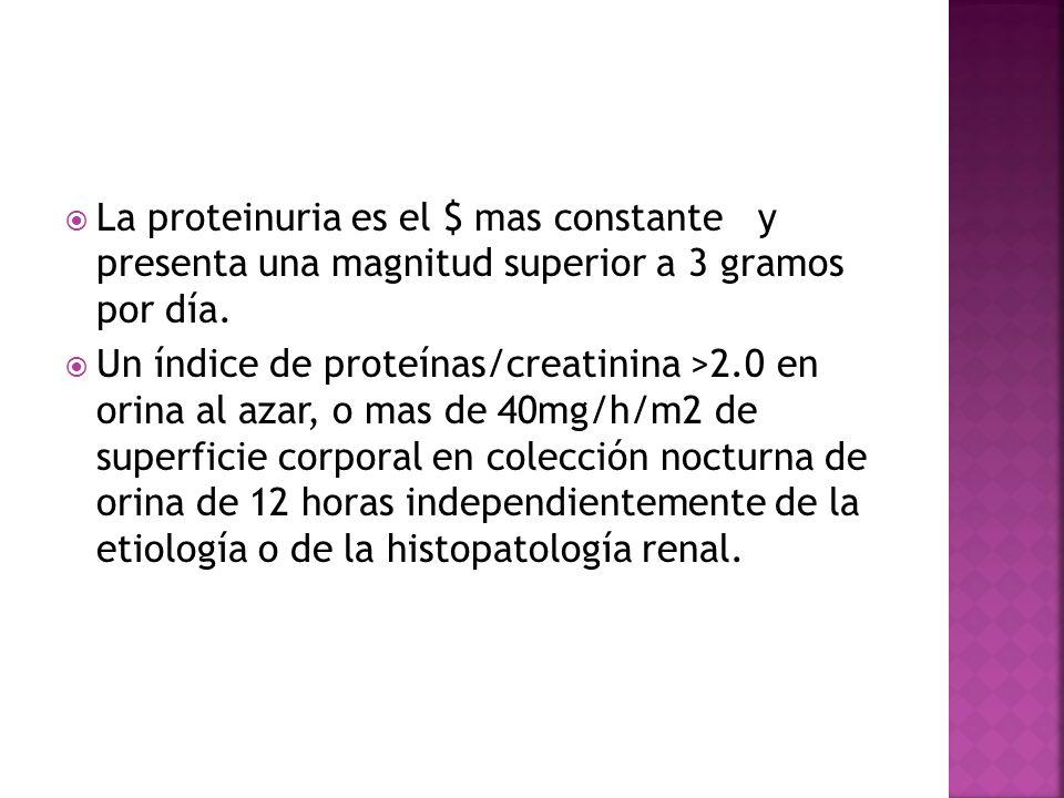 La proteinuria es el $ mas constante y presenta una magnitud superior a 3 gramos por día. Un índice de proteínas/creatinina >2.0 en orina al azar, o m