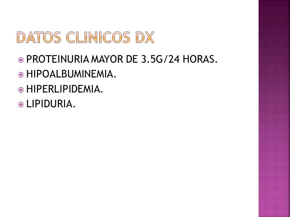 PROTEINURIA MAYOR DE 3.5G/24 HORAS. HIPOALBUMINEMIA. HIPERLIPIDEMIA. LIPIDURIA.