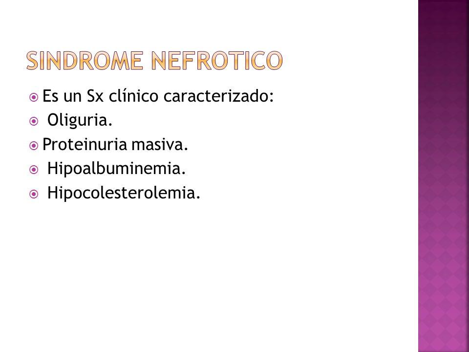 B) TEORIA CLASICA O LA HIPOVOLEMIA: Según la cual el descenso en la presión oncotica secundario a la hipoalbuminemia favorecería una situación de hipovolemia y la retención de H2O y Na, a través de la activación del SRAA.