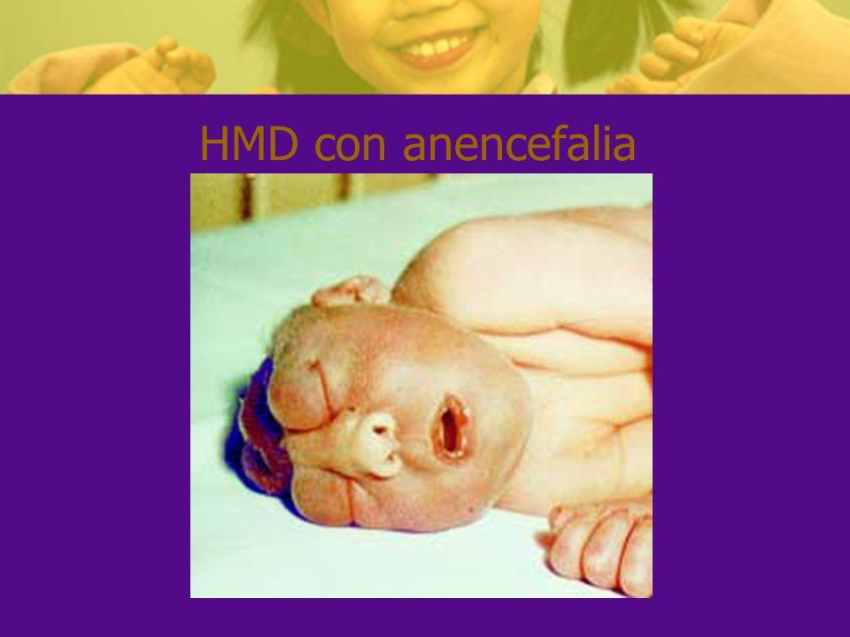 HMD con anencefalia