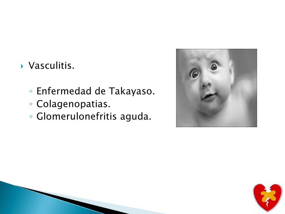 Factores etiológicos precipitantes de insuficiencia cardiaca en el niño: 1.Aumento de la precarga.