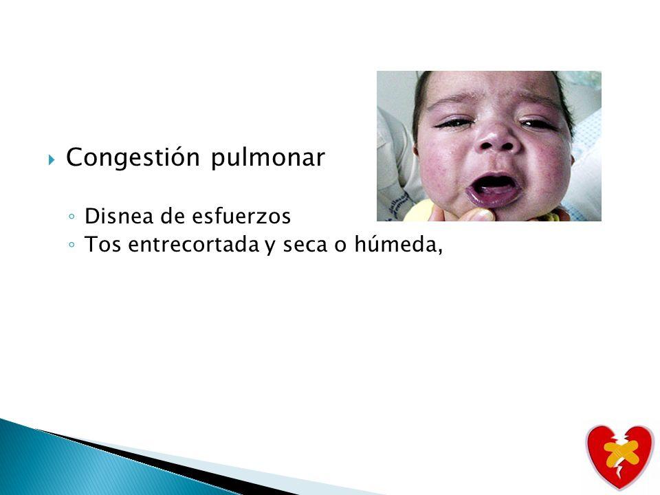 Congestión venosa sistémica Hepatomegalia Ingurgitación venosa.