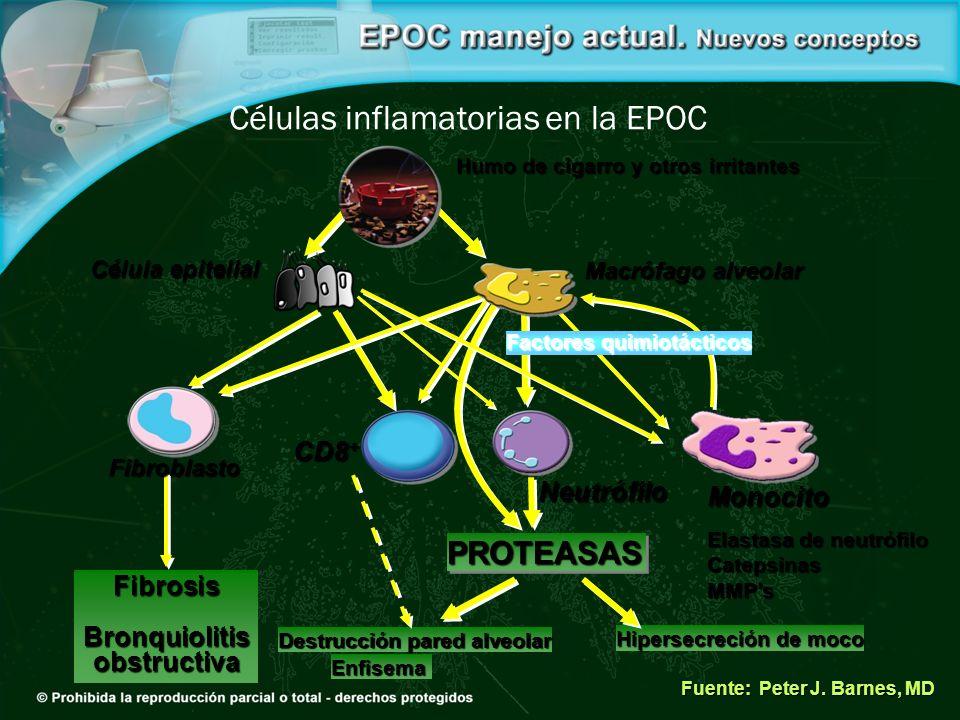 Fuente: Peter J. Barnes, MD PROTEASASPROTEASAS Hipersecreción de moco Destrucción pared alveolar Enfisema FibrosisBronquiolitisobstructiva Células inf