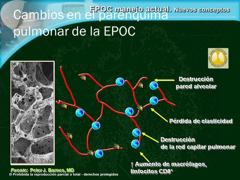 Destrucción pared alveolar Destrucción pared alveolar Pérdida de elasticidad Destrucción de la red capilar pulmonar Destrucción de la red capilar pulm