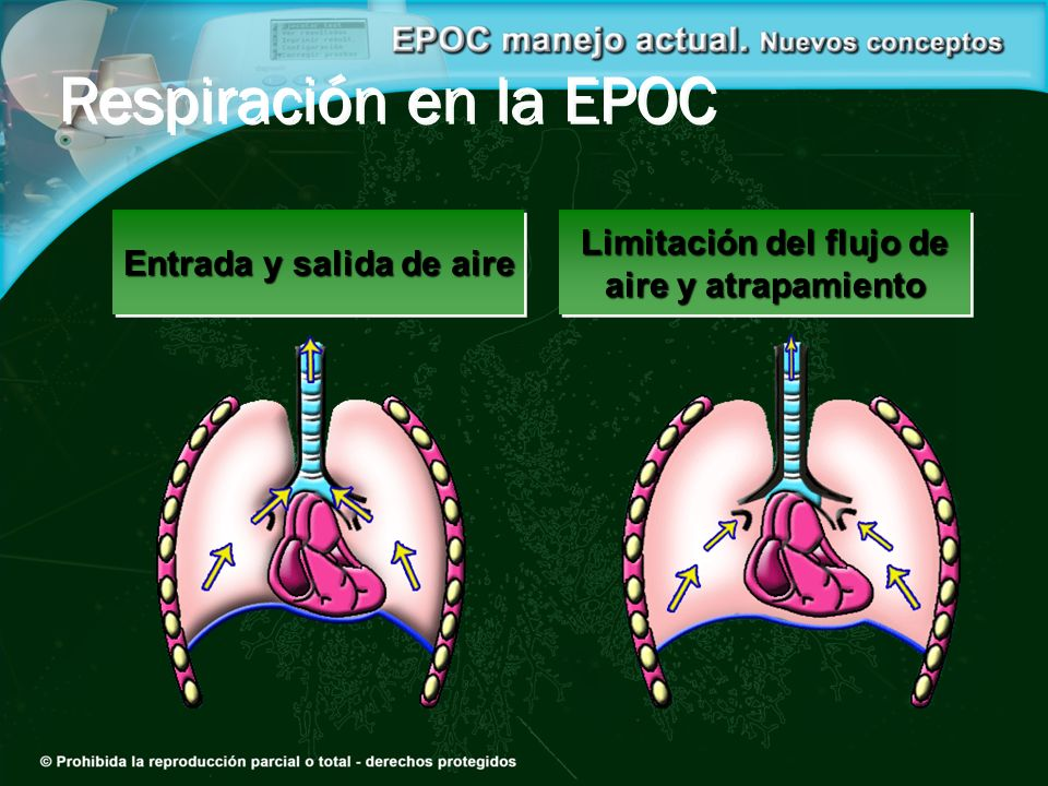 Respiración en la EPOC Limitación del flujo de aire y atrapamiento Limitación del flujo de aire y atrapamiento Entrada y salida de aire