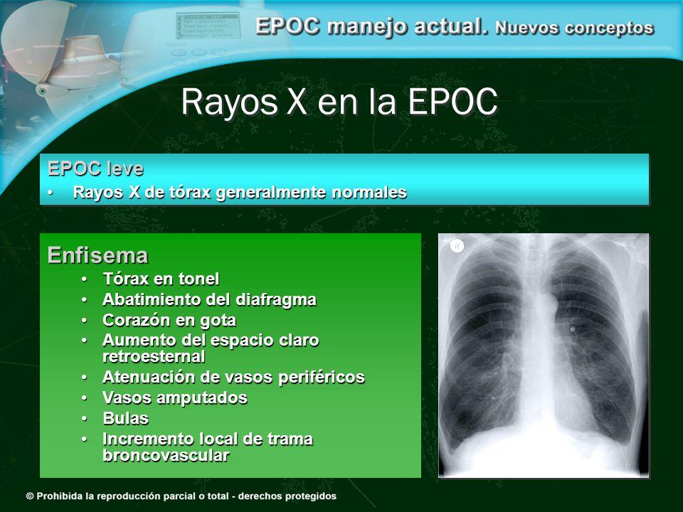 Rayos X en la EPOC EPOC leve Rayos X de tórax generalmente normalesRayos X de tórax generalmente normales EPOC leve Rayos X de tórax generalmente norm
