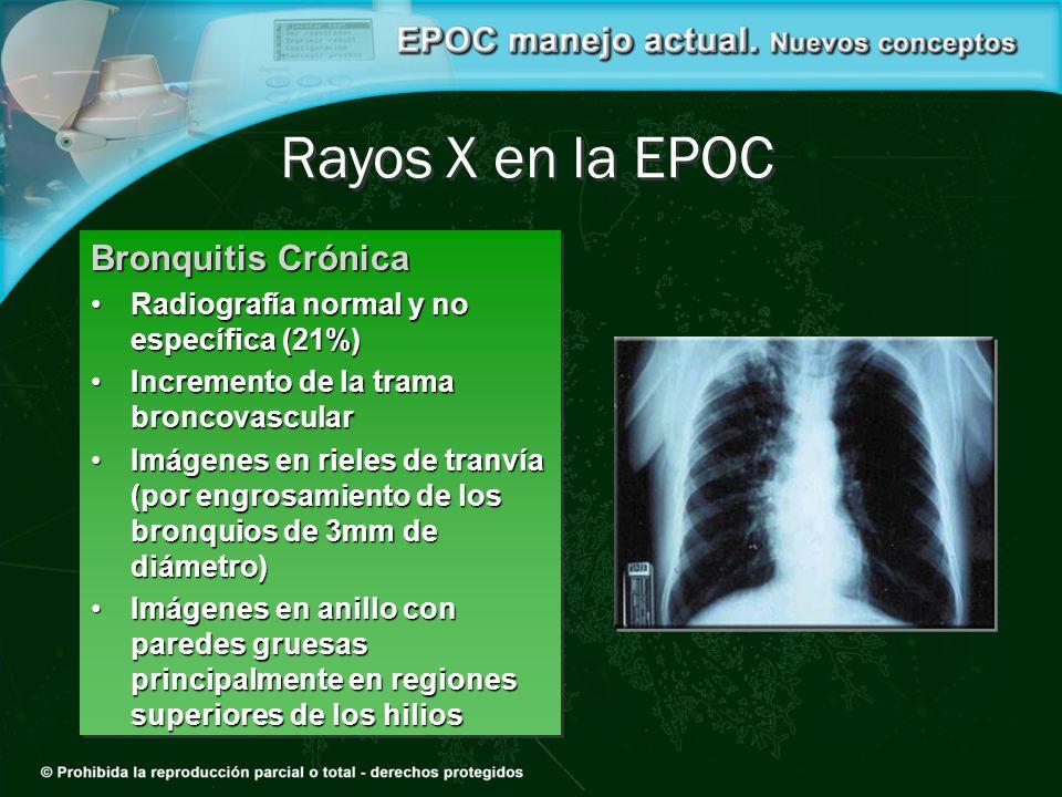 Rayos X en la EPOC Bronquitis Crónica Radiografía normal y no específica (21%)Radiografía normal y no específica (21%) Incremento de la trama broncova