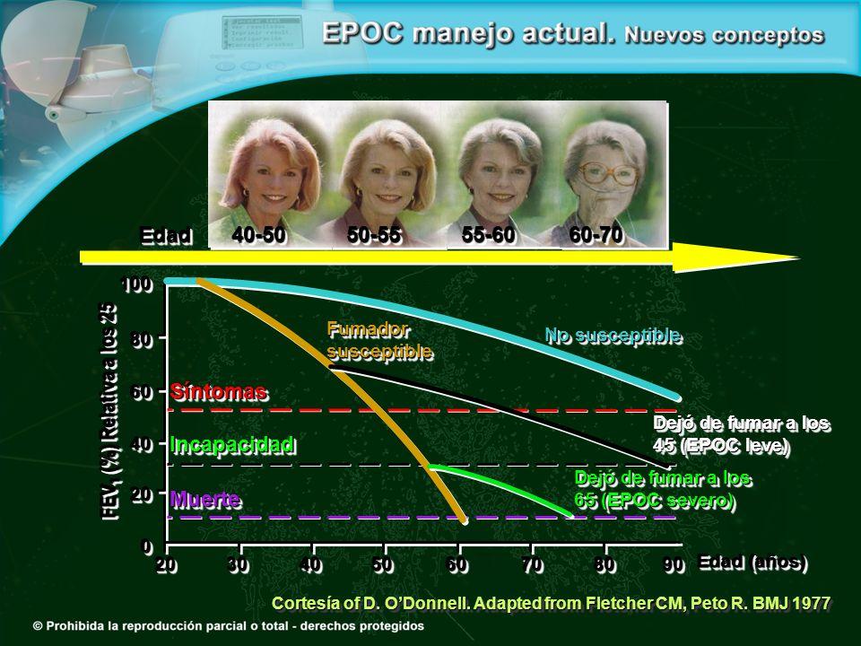 Cortesía of D. ODonnell. Adapted from Fletcher CM, Peto R. BMJ 1977 2020 FEV 1 (%) Relativa a los 25 Edad (años) MuerteMuerte IncapacidadIncapacidad S